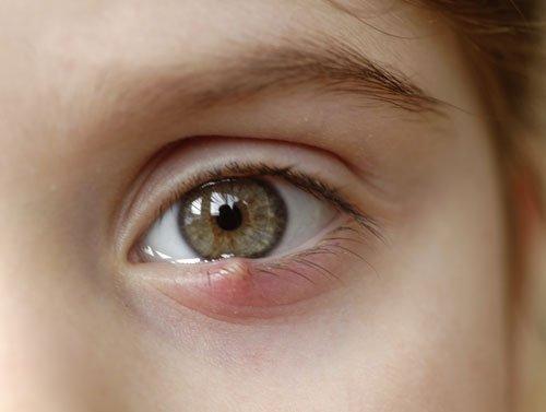 Eye Stye - Hordeulum